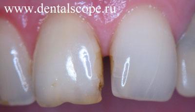 Magic white отбеливание зубов оренбург
