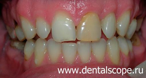 Если зуб потемнел реставрация зубов