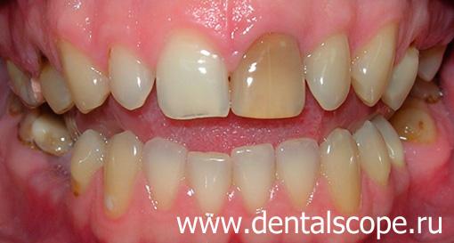 ставят ли виниры на нижние зубы