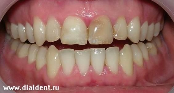 Косметическое отбеливание зубов итальянским гелем